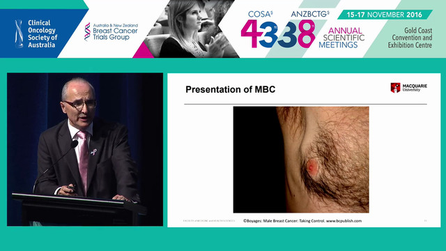 Male Breast Cancer The Challenges John Boyages
