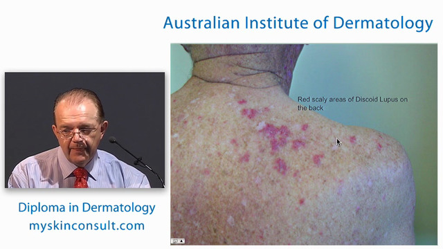 Blistering Skin Diseases and Immunofluorescence Tests