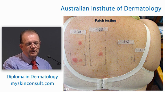 Eczema and Patch Testing