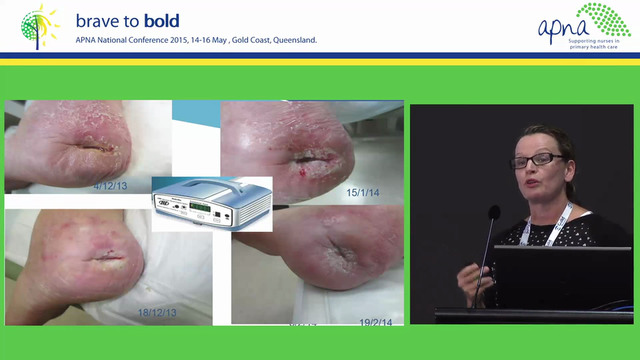 Wound Care Speaker Karen Innes-Walker...