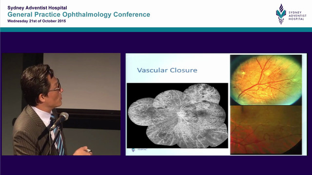 Fundamentals of Diabetic Retinopathy Dr Kwon Kang