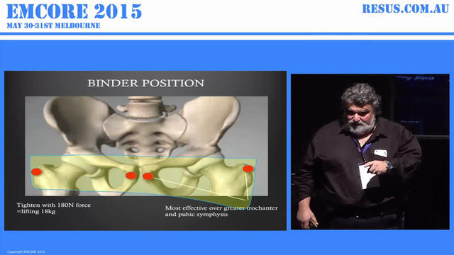 Unstable Pelvic Fracture AProf Peter ...