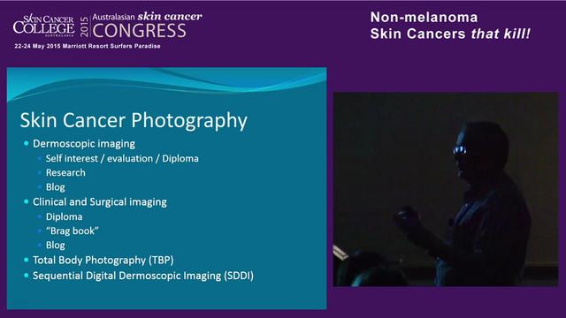 Dermoscopy of Non Melanoma Skin Cancer Dr Richard Johns
