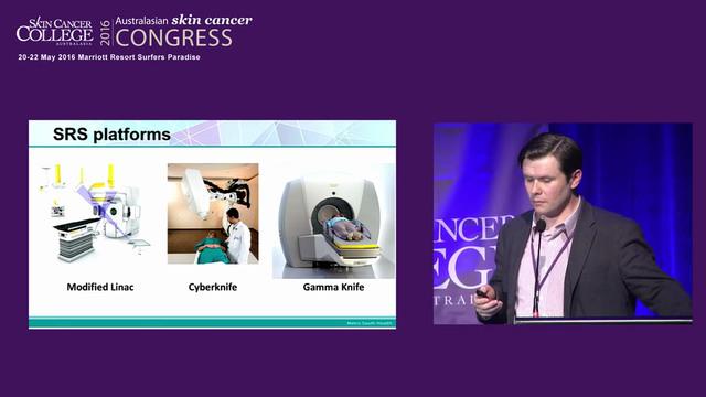 Gamma knife radiosurgery for melanoma...