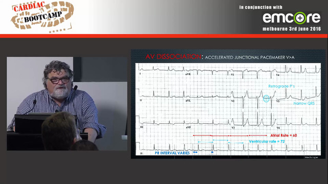 ECG in 20 secs Rate rhythm P-QRS relationship A Prof Peter Kas