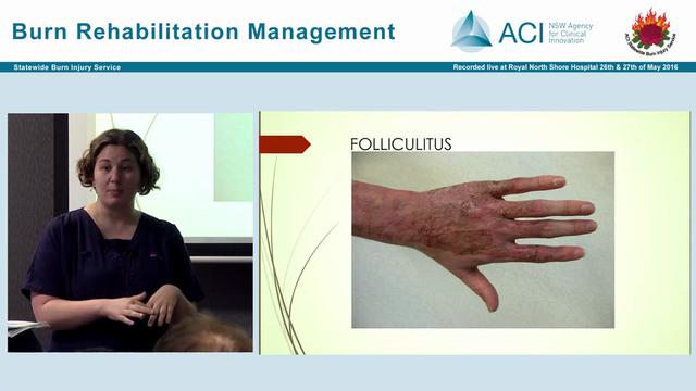 Burn Wound Management in Rehabilitati...
