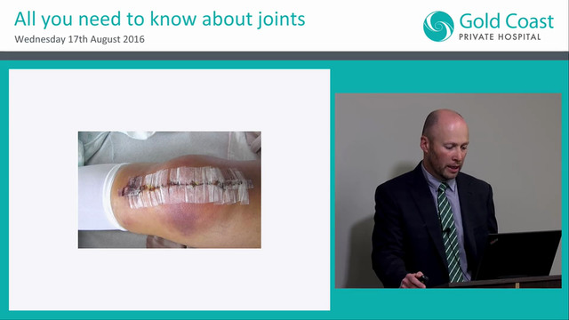 Rapid Recovery & Rehab Improving outcomes in joint replacement Dr Price Gallie Gold Coast
